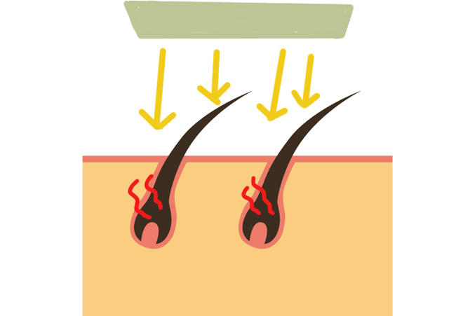 IPL脱毛の図解