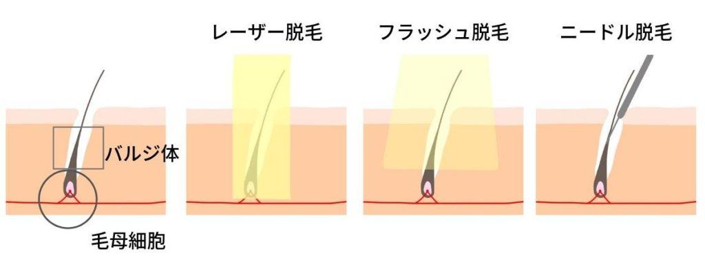 髭(ヒゲ)脱毛のやり方と脱毛効果の違い
