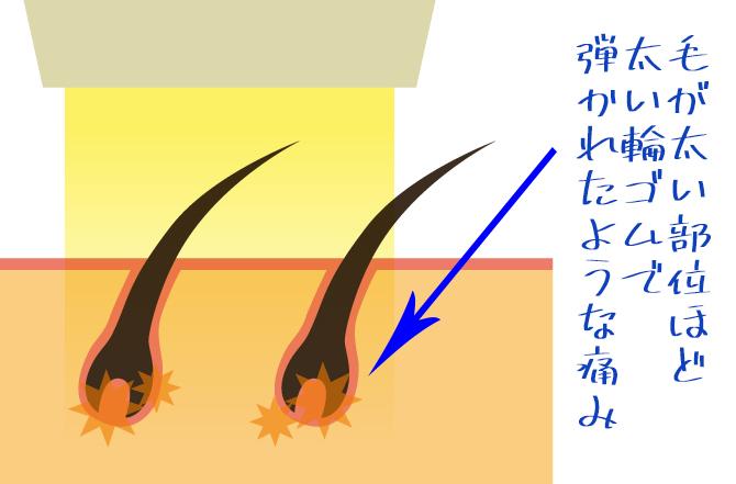 医療レーザー脱毛の痛み