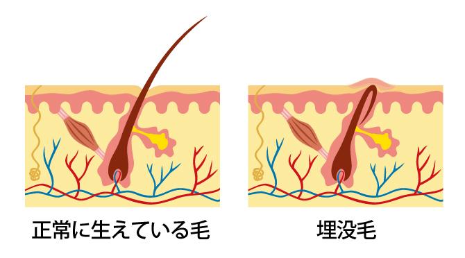 傷ついた毛穴周辺が新しい皮膚におおわれて、ムダ毛が皮膚の中で成長してしまう