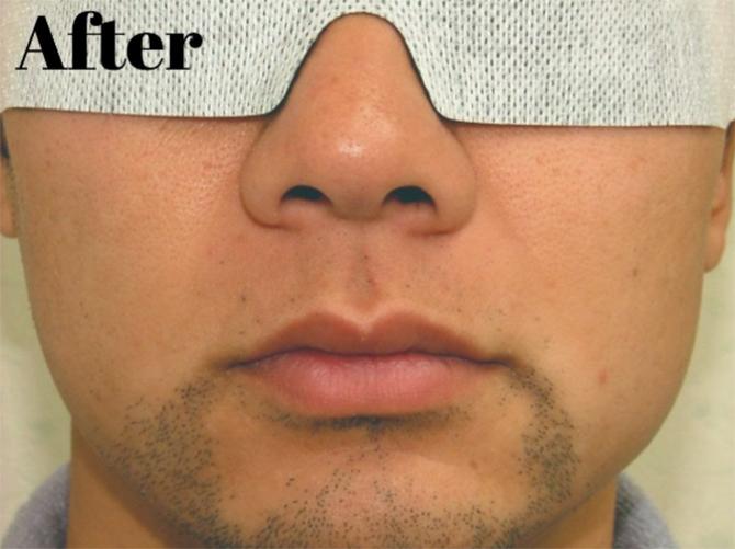 こちらの方は鼻の下から口元にかけての範囲のヒゲを脱毛した例