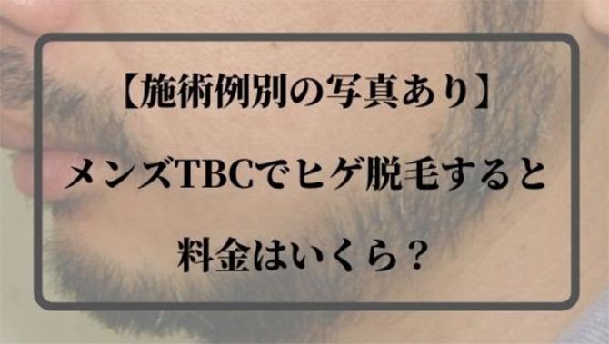メンズTBCヒゲ脱毛料金シミュレーション