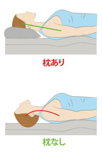 枕 なし ネック ストレート 枕が合わない原因(肩こり・首の痛み・頭痛・ストレートネック・症状)