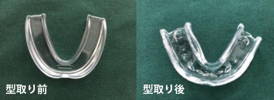 左側が型取り前、右側が型を取った後のマウスピース